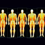 Inability to safely store fat increases risk of diabetes and heart disease