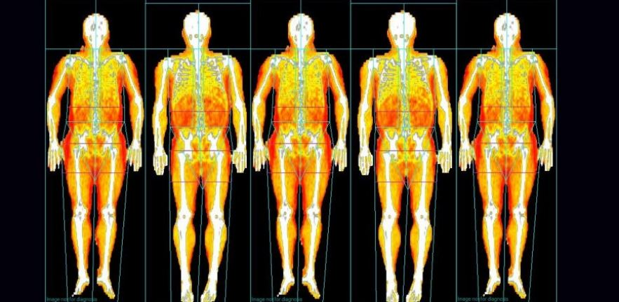 Five DEXA 2 scan images side by side
